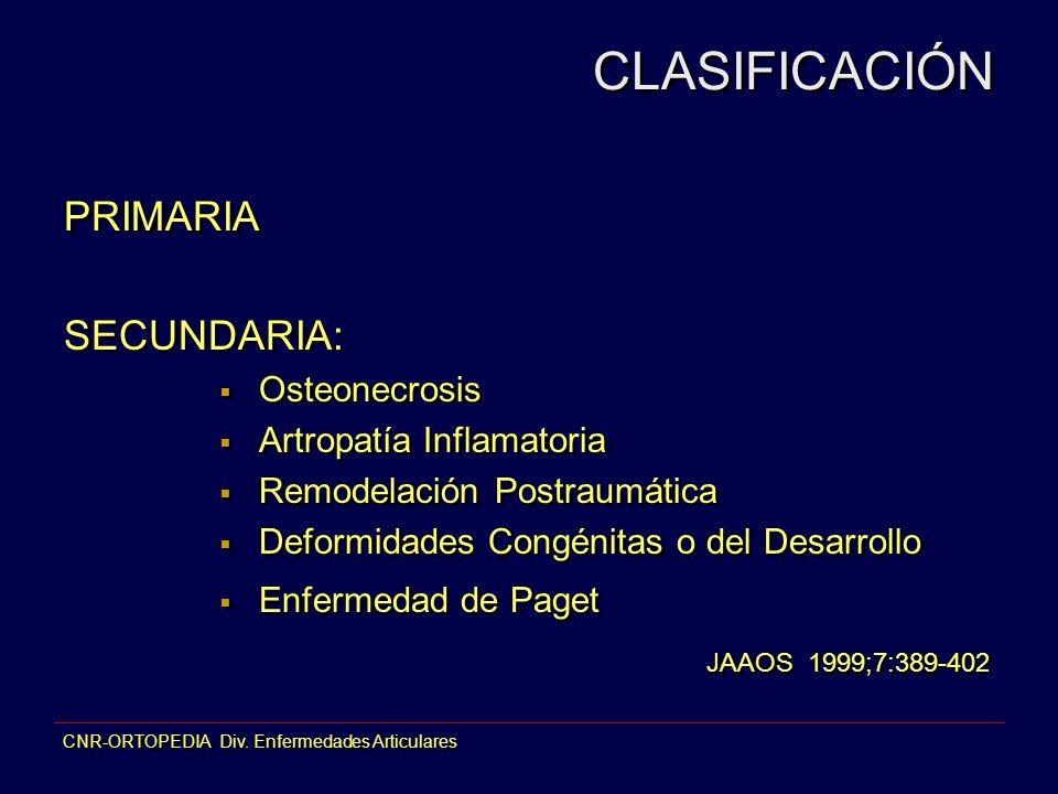 CLASIFICACIÓN PRIMARIA SECUNDARIA: Osteonecrosis