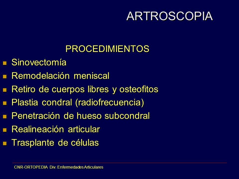 ARTROSCOPIA PROCEDIMIENTOS Sinovectomía Remodelación meniscal