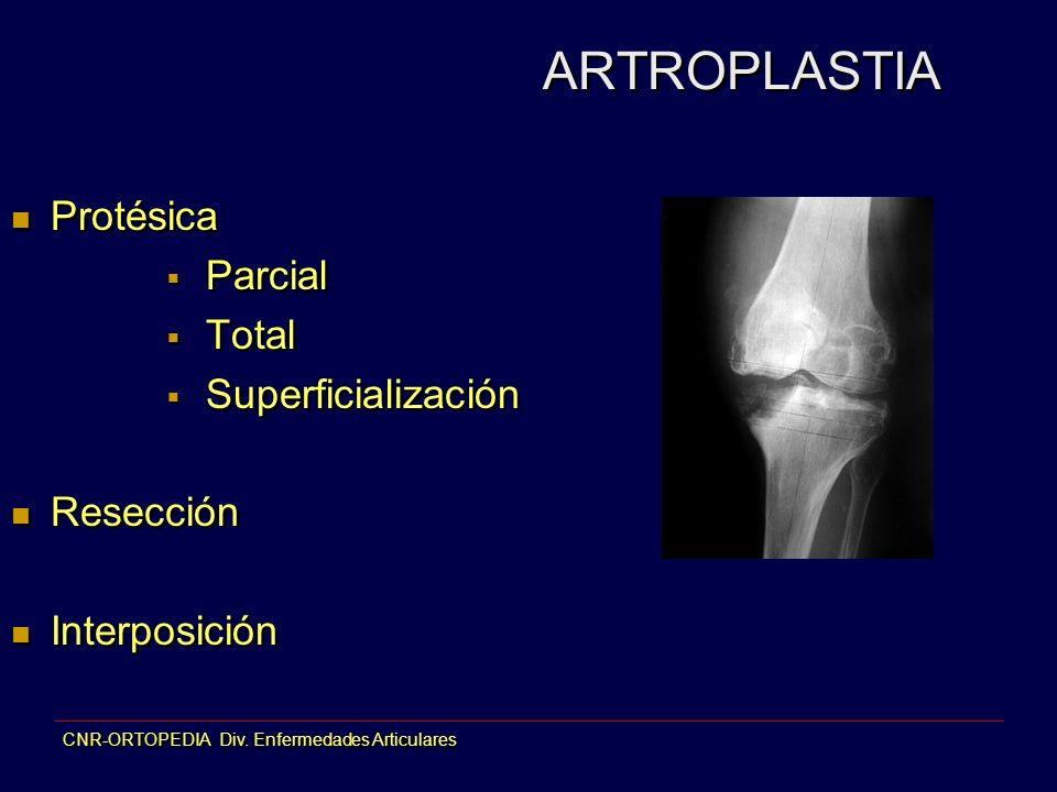 ARTROPLASTIA Protésica Parcial Total Superficialización Resección