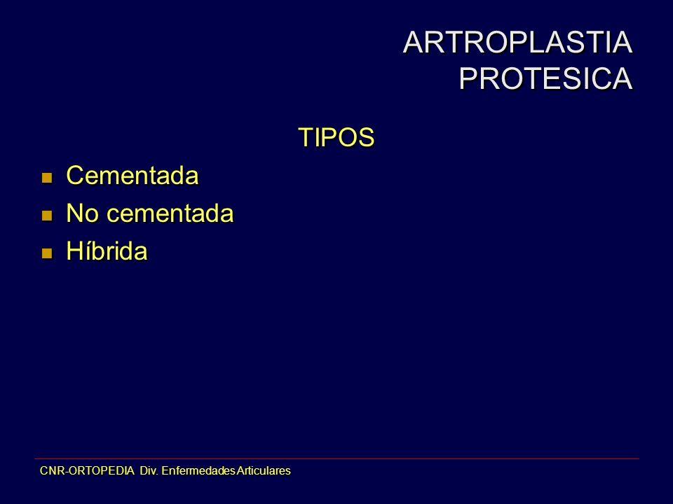 ARTROPLASTIA PROTESICA