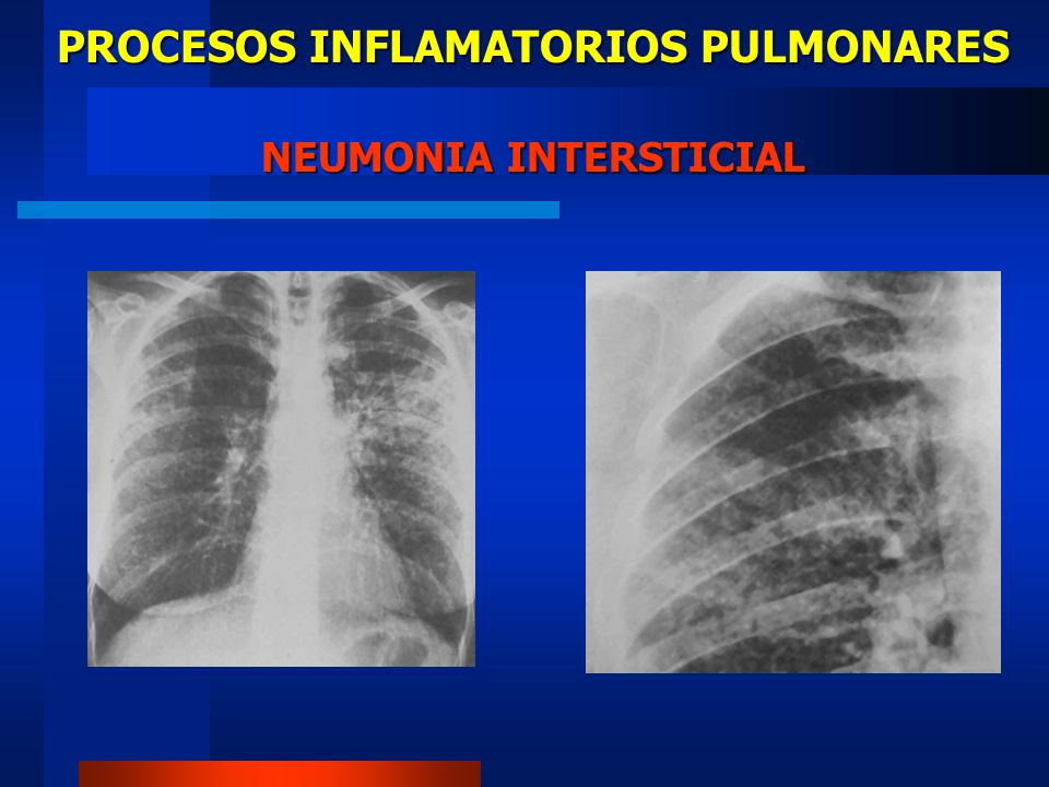 PROCESOS INFLAMATORIOS PULMONARES NEUMONIA INTERSTICIAL