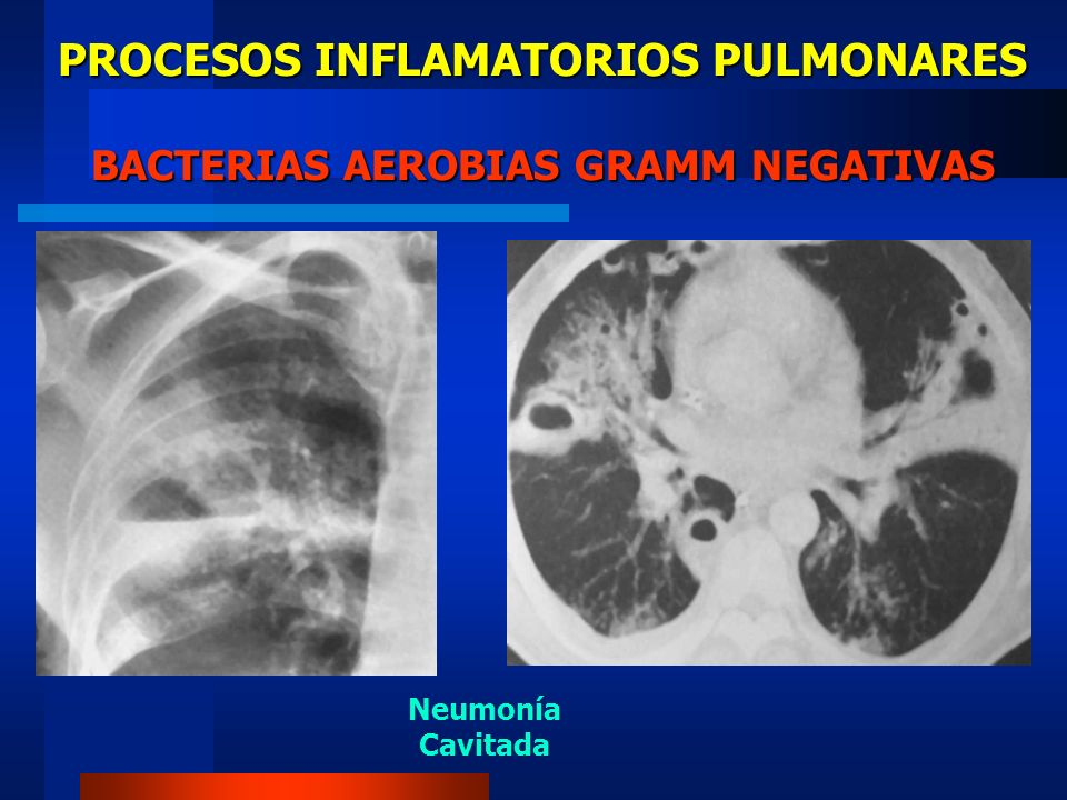 PROCESOS INFLAMATORIOS PULMONARES BACTERIAS AEROBIAS GRAMM NEGATIVAS