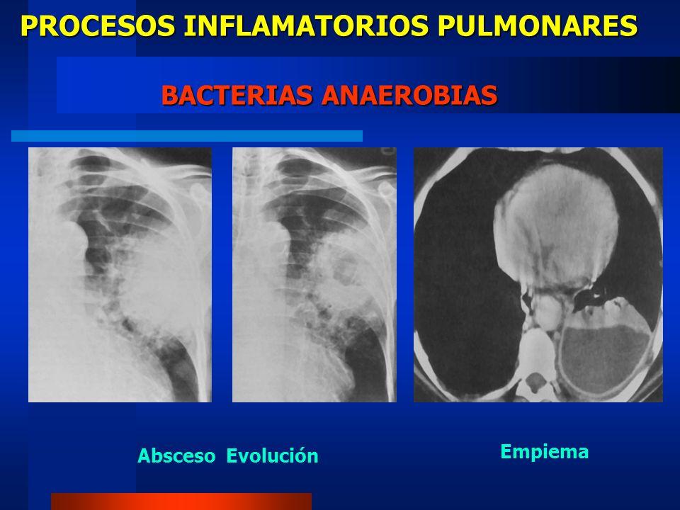 PROCESOS INFLAMATORIOS PULMONARES BACTERIAS ANAEROBIAS