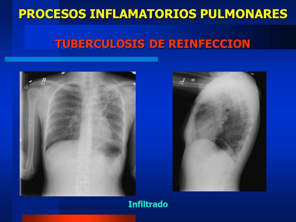 PROCESOS INFLAMATORIOS PULMONARES TUBERCULOSIS DE REINFECCION
