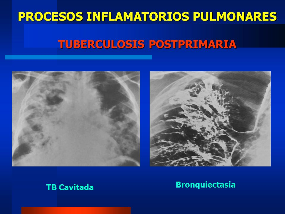 PROCESOS INFLAMATORIOS PULMONARES TUBERCULOSIS POSTPRIMARIA