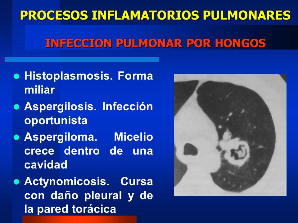 PROCESOS INFLAMATORIOS PULMONARES INFECCION PULMONAR POR HONGOS