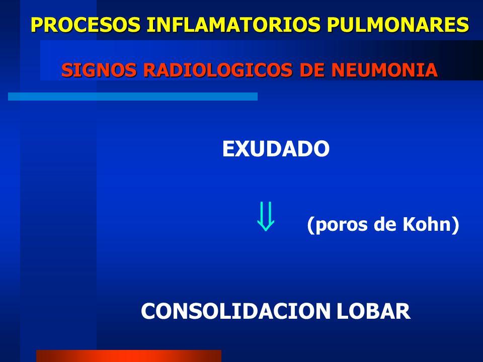PROCESOS INFLAMATORIOS PULMONARES SIGNOS RADIOLOGICOS DE NEUMONIA