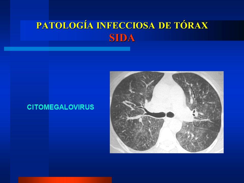 PATOLOGÍA INFECCIOSA DE TÓRAX SIDA