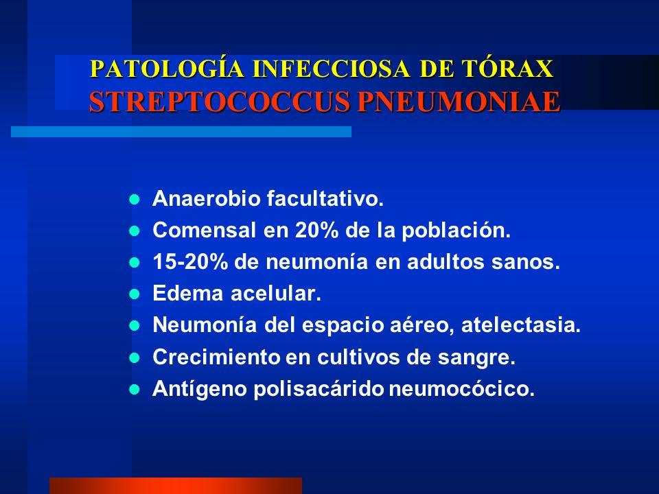 PATOLOGÍA INFECCIOSA DE TÓRAX STREPTOCOCCUS PNEUMONIAE