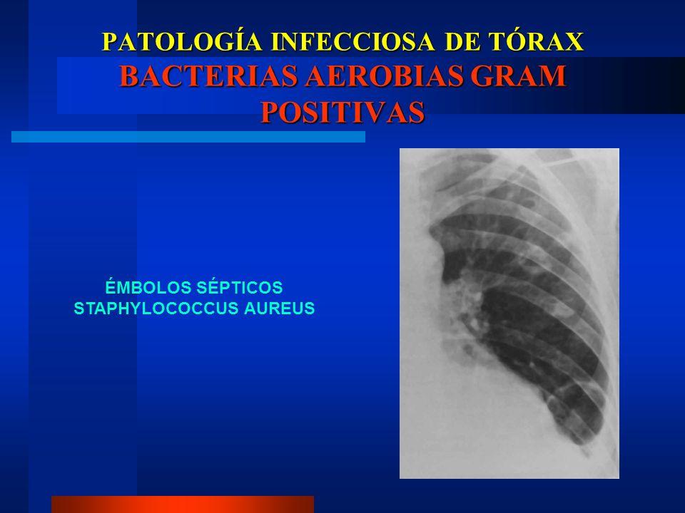 PATOLOGÍA INFECCIOSA DE TÓRAX BACTERIAS AEROBIAS GRAM POSITIVAS