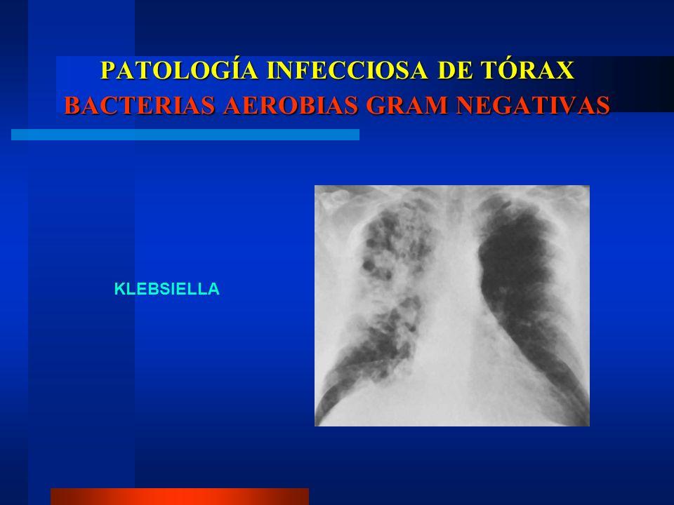 PATOLOGÍA INFECCIOSA DE TÓRAX BACTERIAS AEROBIAS GRAM NEGATIVAS