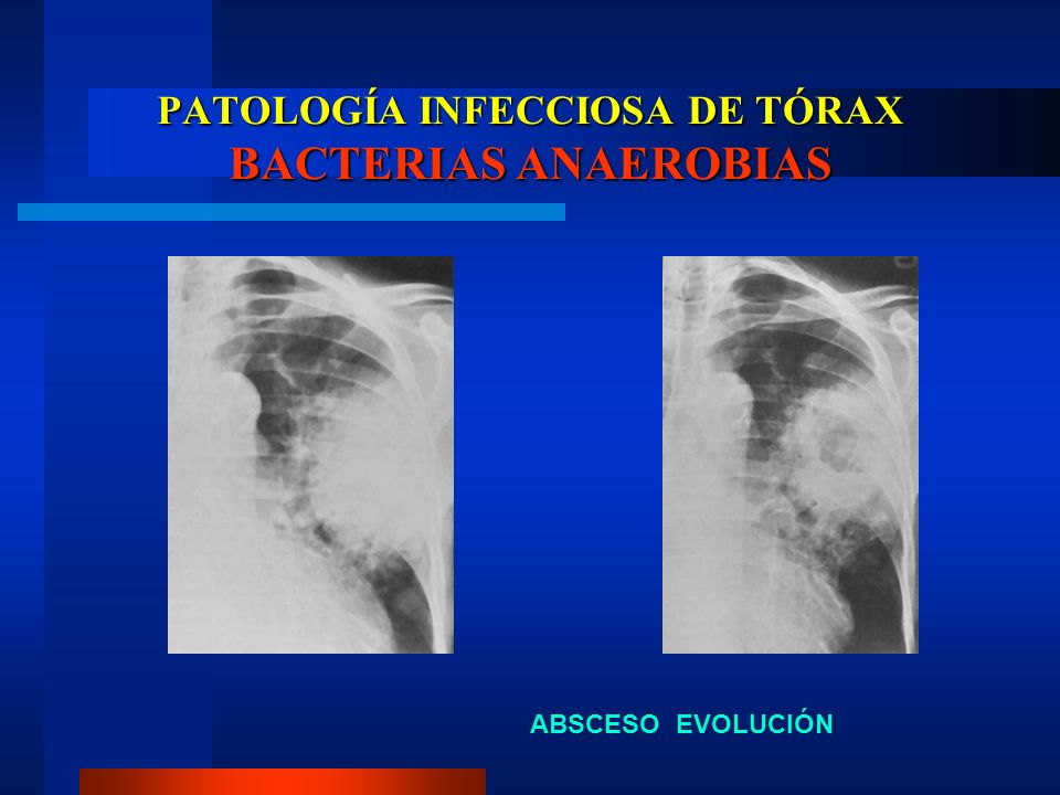 PATOLOGÍA INFECCIOSA DE TÓRAX BACTERIAS ANAEROBIAS