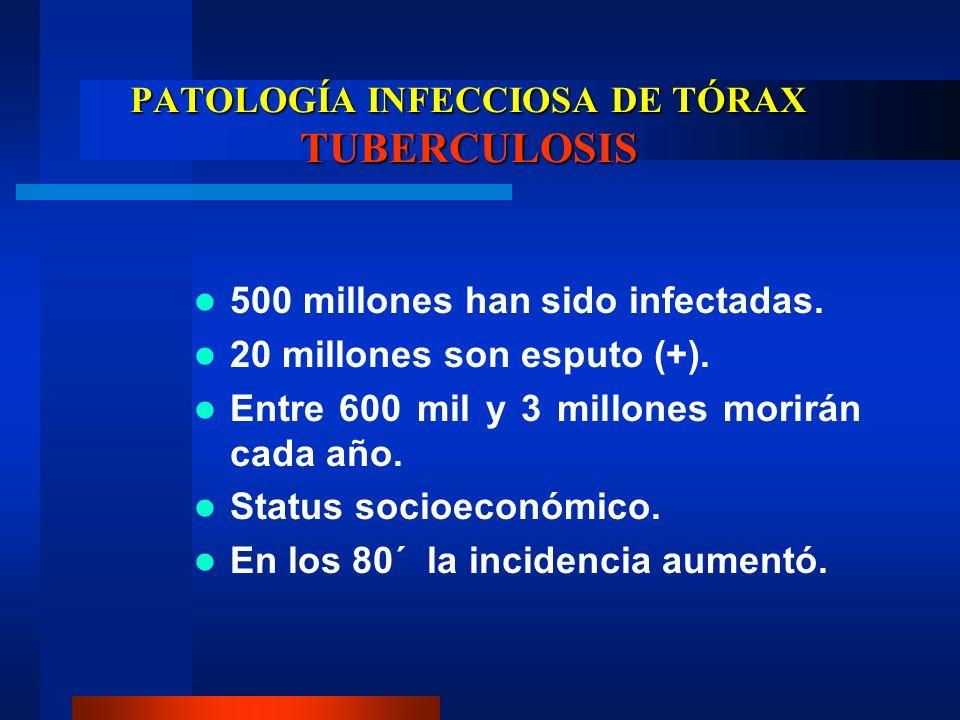 PATOLOGÍA INFECCIOSA DE TÓRAX TUBERCULOSIS