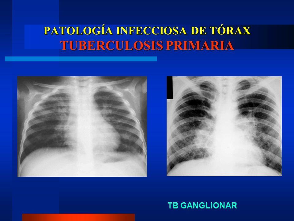 PATOLOGÍA INFECCIOSA DE TÓRAX TUBERCULOSIS PRIMARIA