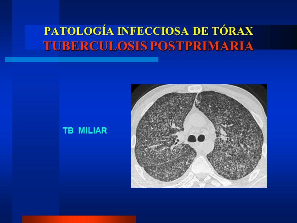 PATOLOGÍA INFECCIOSA DE TÓRAX TUBERCULOSIS POSTPRIMARIA