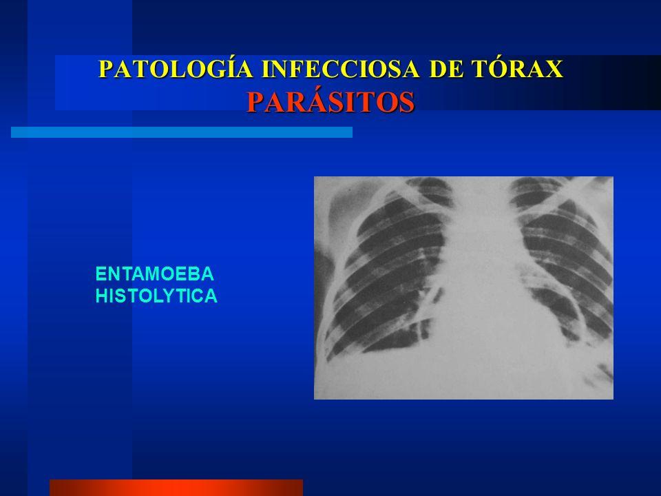 PATOLOGÍA INFECCIOSA DE TÓRAX PARÁSITOS