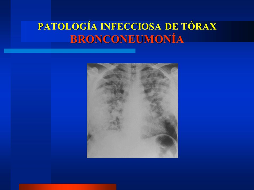 PATOLOGÍA INFECCIOSA DE TÓRAX BRONCONEUMONÍA