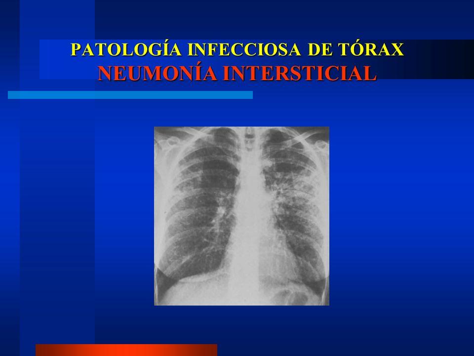 PATOLOGÍA INFECCIOSA DE TÓRAX NEUMONÍA INTERSTICIAL