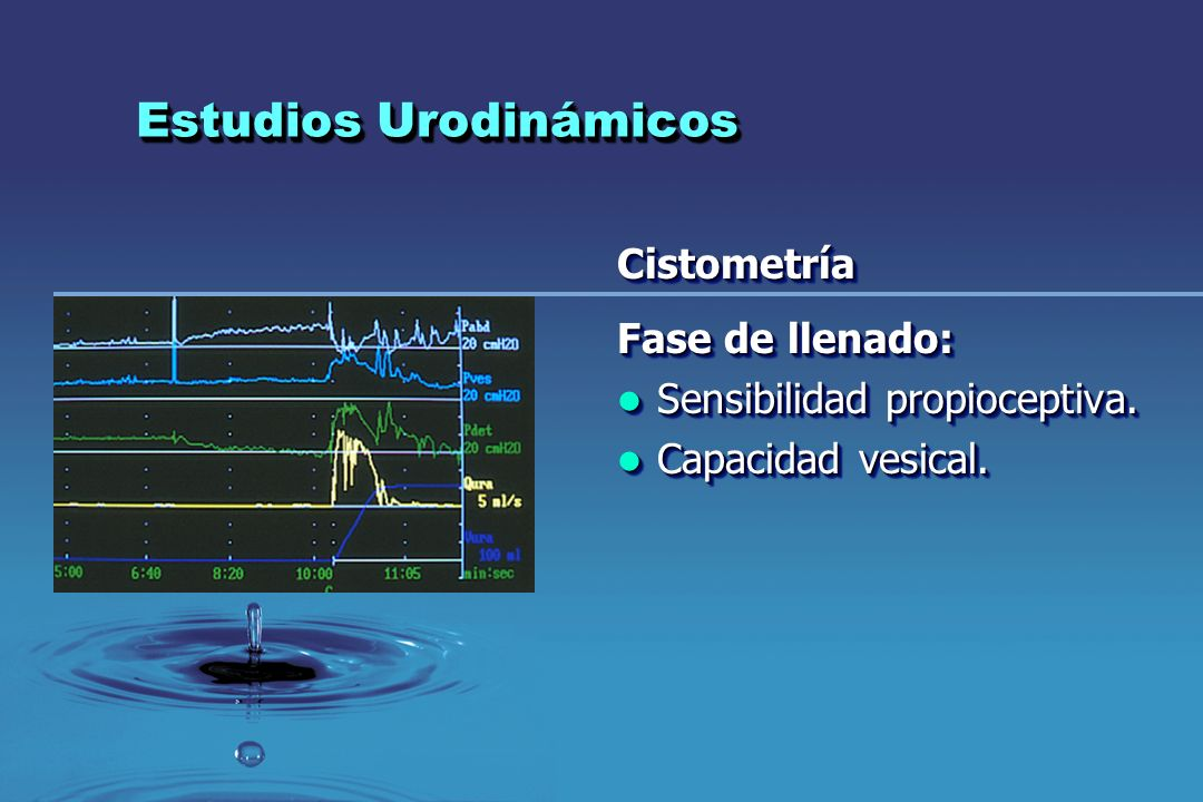 Estudios Urodinámicos