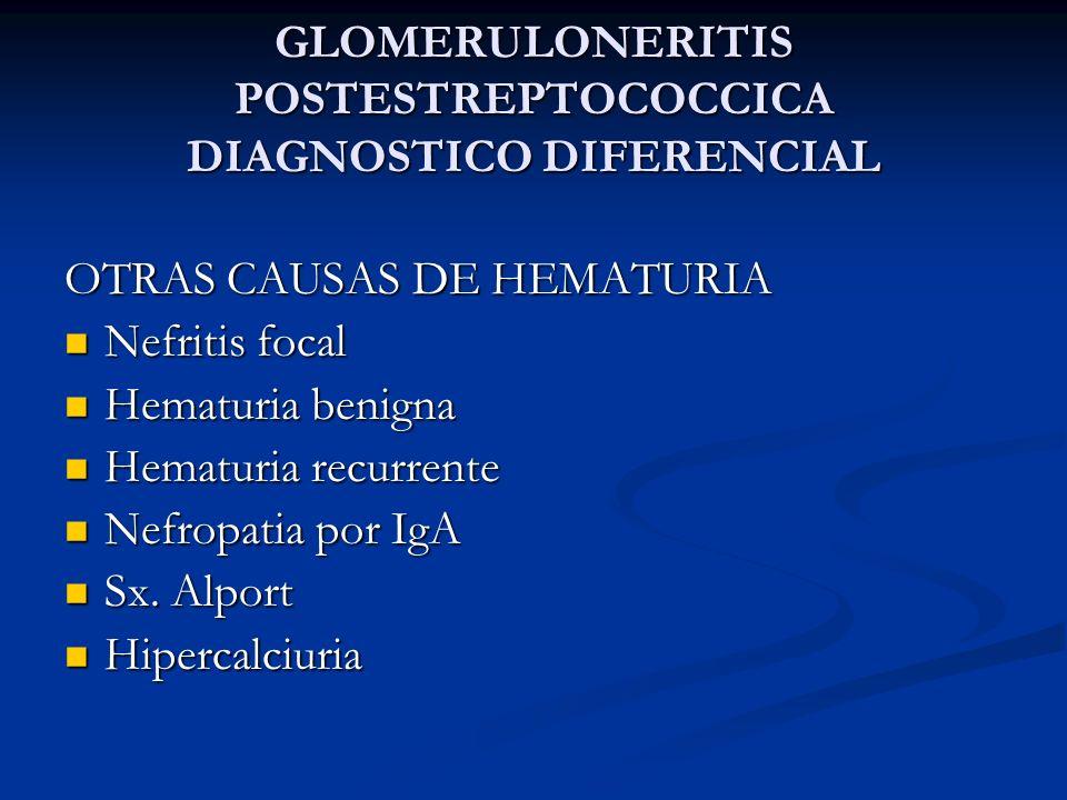 GLOMERULONERITIS POSTESTREPTOCOCCICA DIAGNOSTICO DIFERENCIAL