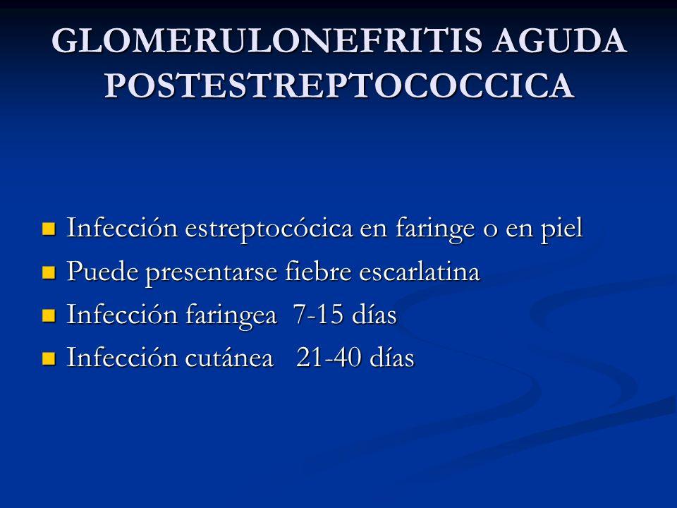GLOMERULONEFRITIS AGUDA POSTESTREPTOCOCCICA