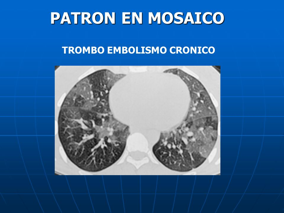 PATRON EN MOSAICO TROMBO EMBOLISMO CRONICO