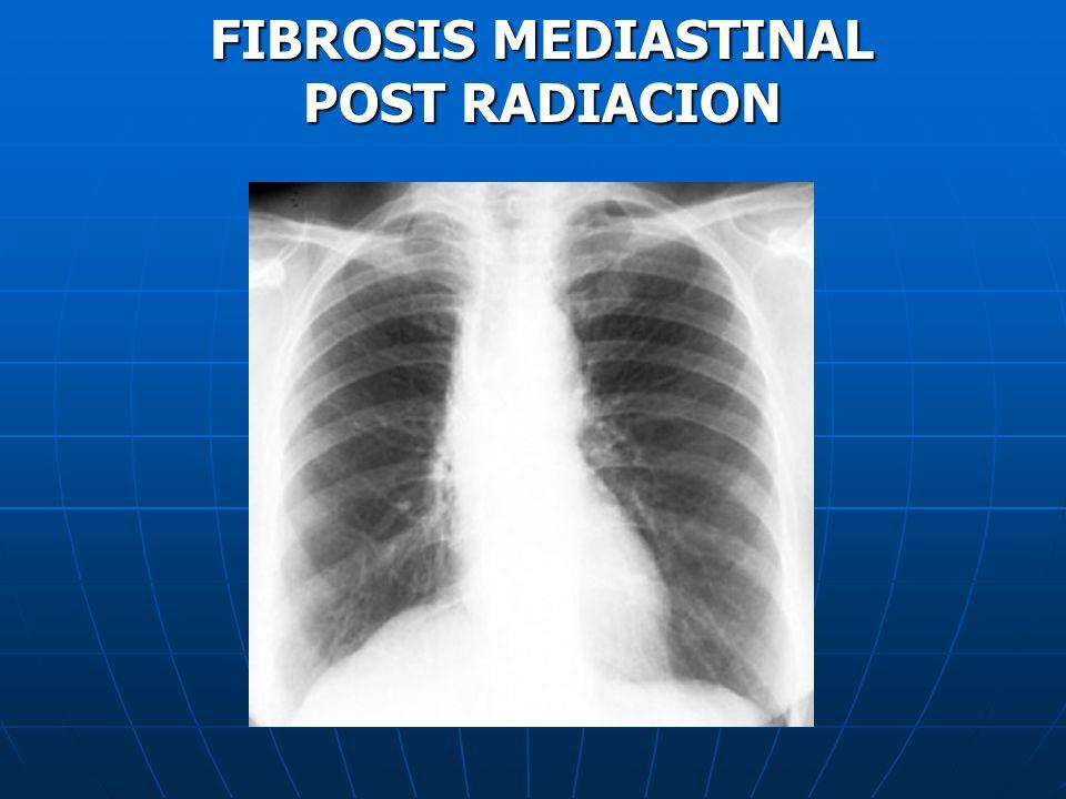FIBROSIS MEDIASTINAL POST RADIACION