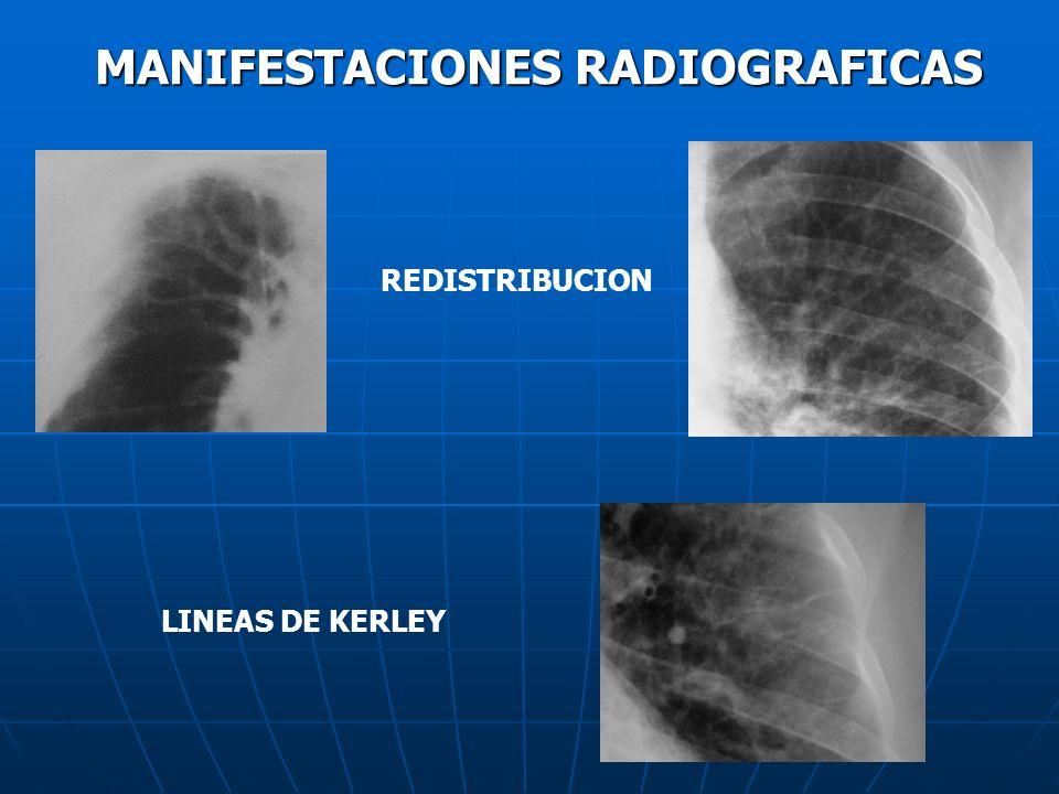 MANIFESTACIONES RADIOGRAFICAS