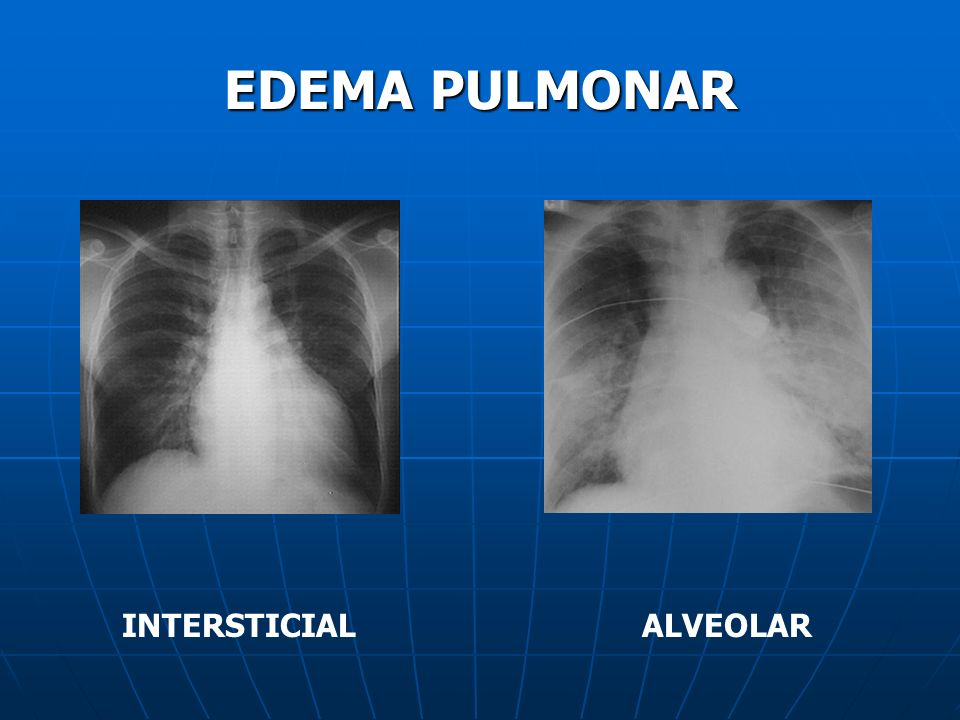 EDEMA PULMONAR INTERSTICIAL ALVEOLAR
