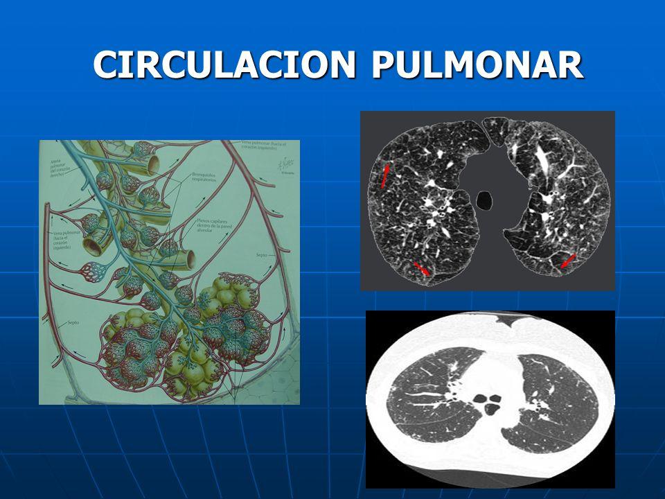 CIRCULACION PULMONAR