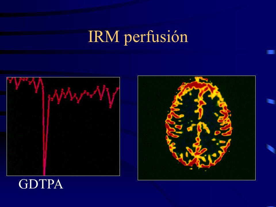 IRM perfusión GDTPA