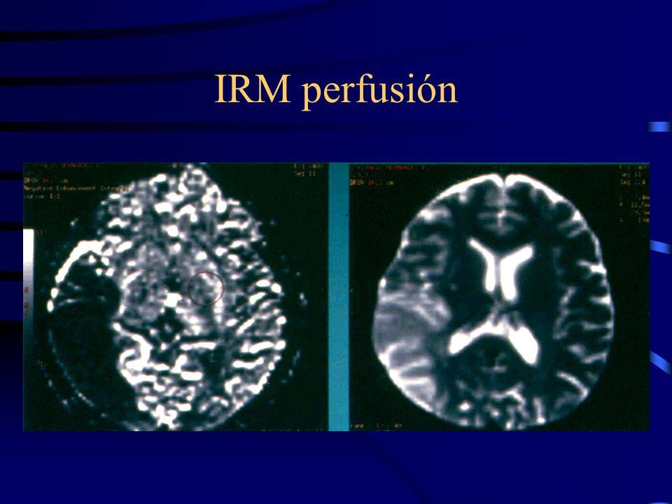 IRM perfusión
