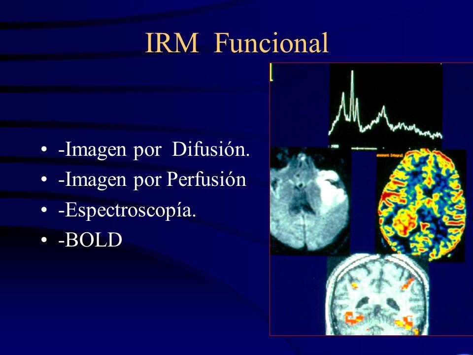 IRM Funcional -Imagen por Difusión. -Imagen por Perfusión