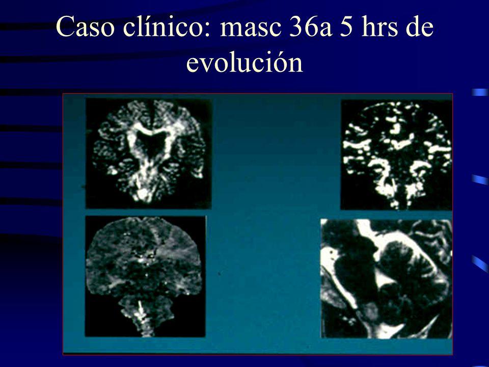 Caso clínico: masc 36a 5 hrs de evolución