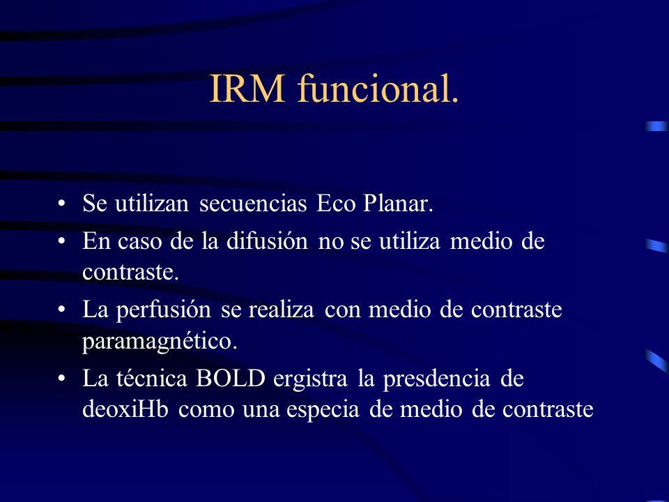 IRM funcional. Se utilizan secuencias Eco Planar.