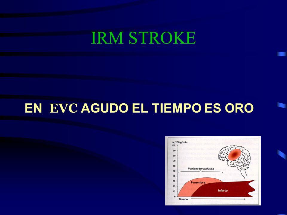 IRM STROKE EN EVC AGUDO EL TIEMPO ES ORO