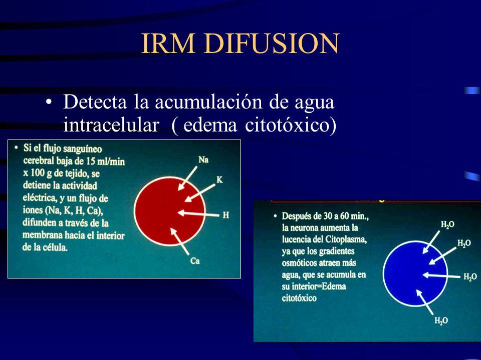 IRM DIFUSION Detecta la acumulación de agua intracelular ( edema citotóxico)