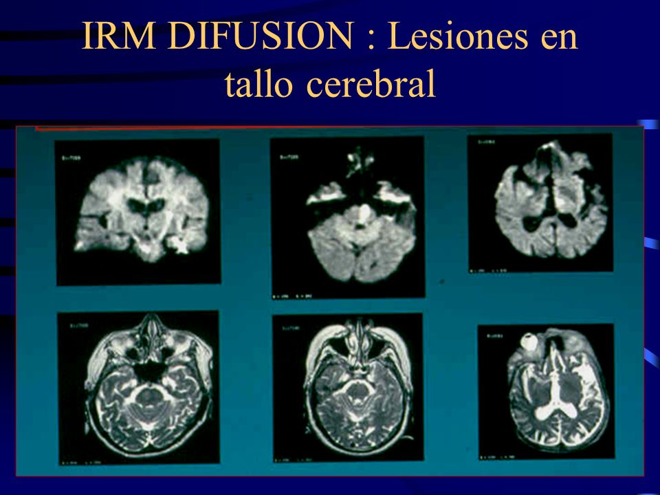 IRM DIFUSION : Lesiones en tallo cerebral