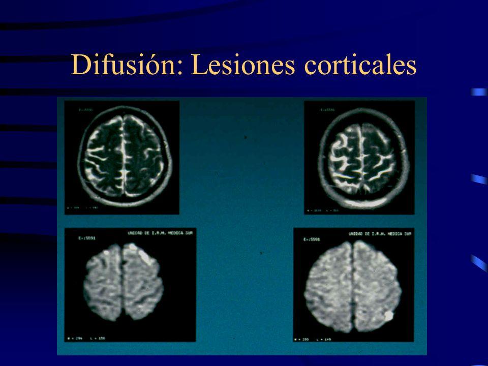 Difusión: Lesiones corticales