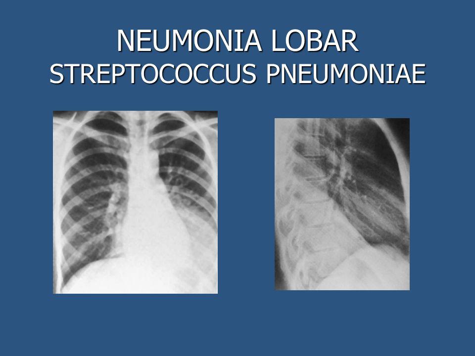NEUMONIA LOBAR STREPTOCOCCUS PNEUMONIAE