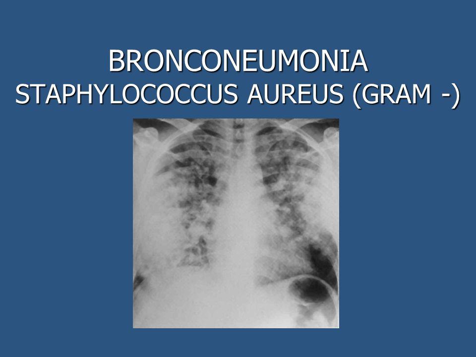 BRONCONEUMONIA STAPHYLOCOCCUS AUREUS (GRAM -)