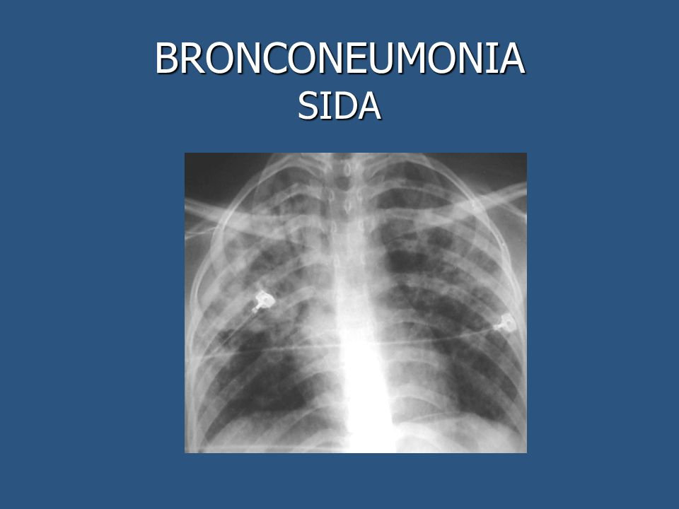 BRONCONEUMONIA SIDA