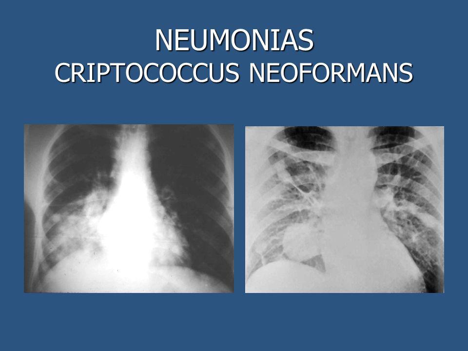 NEUMONIAS CRIPTOCOCCUS NEOFORMANS
