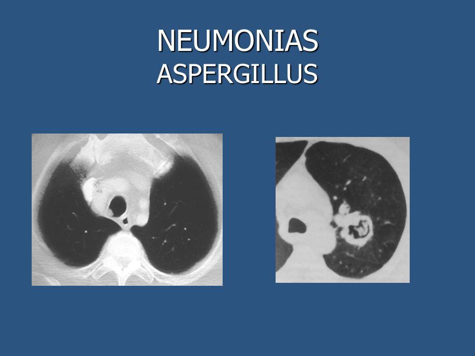 NEUMONIAS ASPERGILLUS