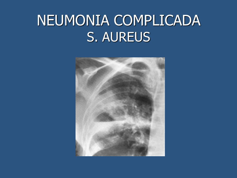 NEUMONIA COMPLICADA S. AUREUS