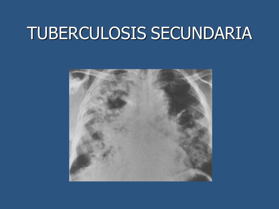 TUBERCULOSIS SECUNDARIA