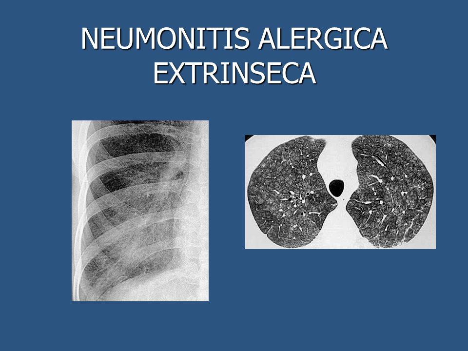 NEUMONITIS ALERGICA EXTRINSECA