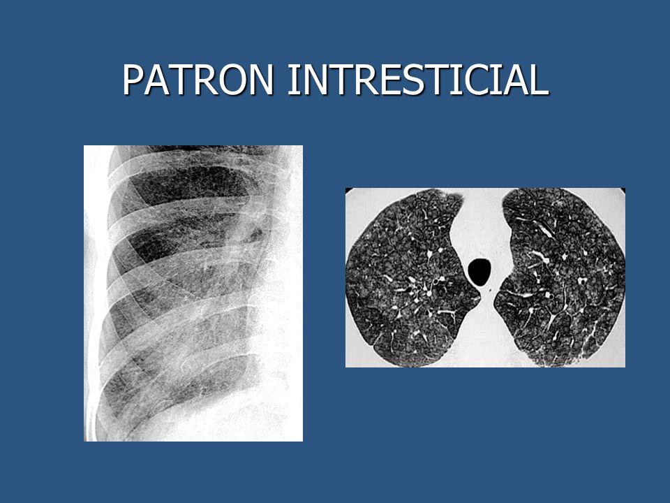 PATRON INTRESTICIAL