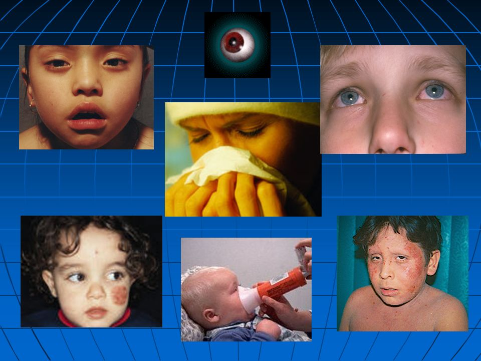 All of us are very familiar with the classical rhinoconjunctivitis associated with hayfever in children and teenagers.