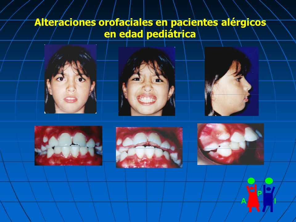 Alteraciones orofaciales en pacientes alérgicos en edad pediátrica